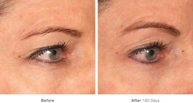 Before & after 4 eyebrow