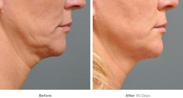 Before & after 5 under the chin
